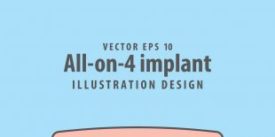 All-on-4 (All on Four) Dental Implants